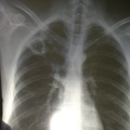 Tuberculosis, x-ray, cavity
